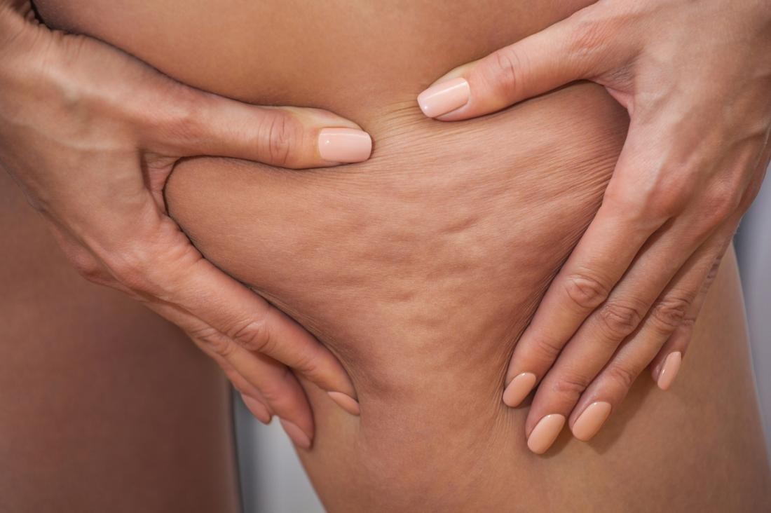 Cellulite Removal Treatment In Pune, Cellulite treatment in Pune, Cellulite doctor in Pune, Cellulite specialist in Pune