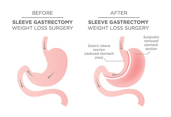 Sleeve Gastrectomy in Pune and Mumbai, Weight Loss Treatment In Pune and Mumbai, Obesity Treatment in Pune and Mumbai