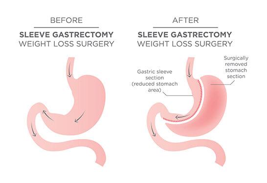 Sleeve Gastrectomy in Pune and Mumbai
