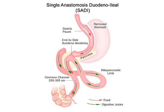 Sleeve Gastrectomy Deuodeno-Ileostomy, Weight Loss Treatment In Pune and Mumbai, Obesity Treatment in Pune and Mumbai