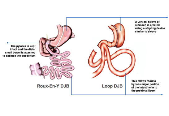 Sleeve Gastrectomy with Duodeno-Jejunostomy(DJB)