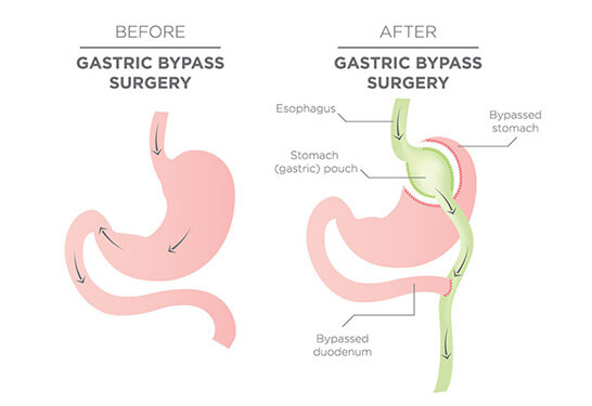 Banded Roux-en-Y Gastric Bypass in Pune and Mumbai, Weight Loss Treatment In Pune and Mumbai, Obesity Treatment in Pune and Mumbai