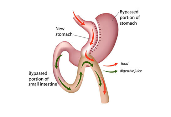 Mini Gastric Bypass / Single anastomosis Gastric By-pass