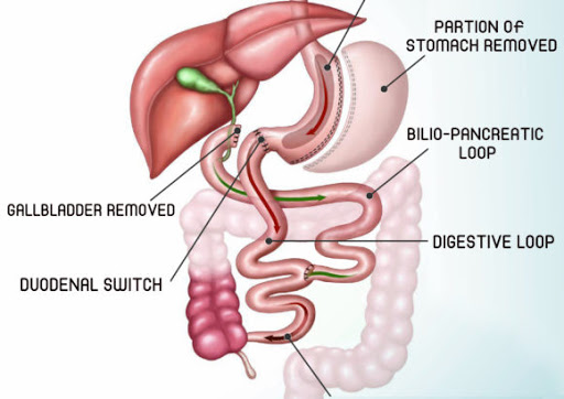 Duodenal Switch, Weight Loss Treatment In Pune and Mumbai, Obesity Treatment in Pune and Mumbai