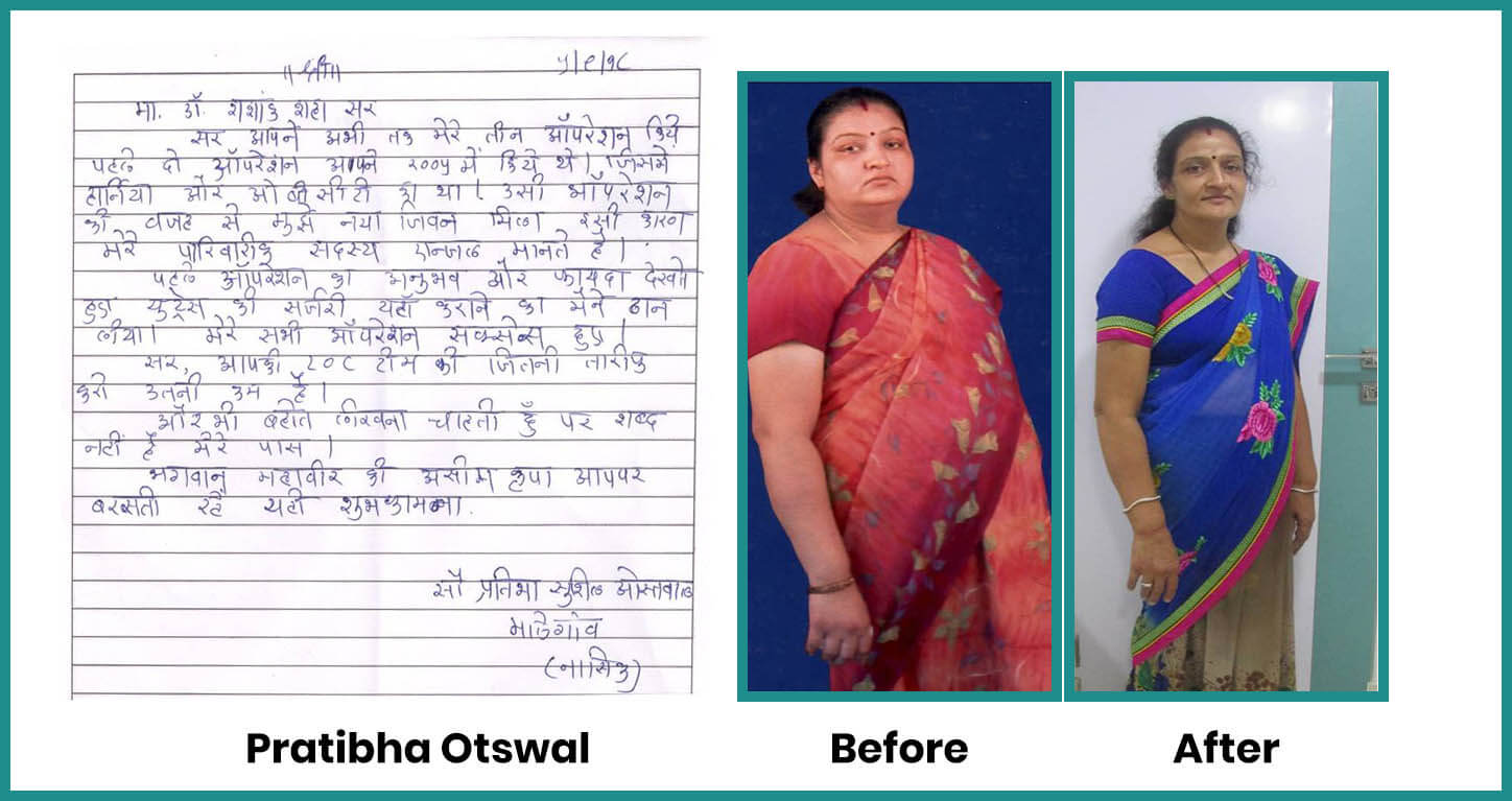 obesity patient testimonial | obesity patient weight loss journey | how to lose weight | bariatric patient testimonial | Dr Shashank Shah testimonials | weight loss story | patent after bariatric surgery | life after bariatric surgery | patient after bariatric surgery for obesity | obese patient